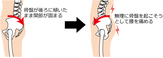 骨盤の傾きと痛みの発生原理のイラスト|南区
