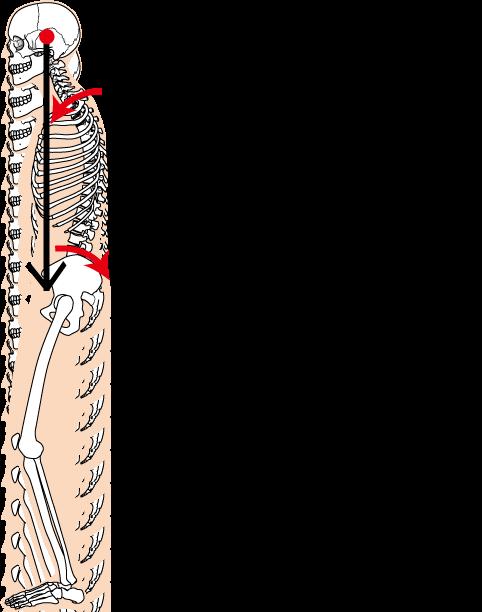 頭の重心と骨盤の後傾のイラスト2|天白区