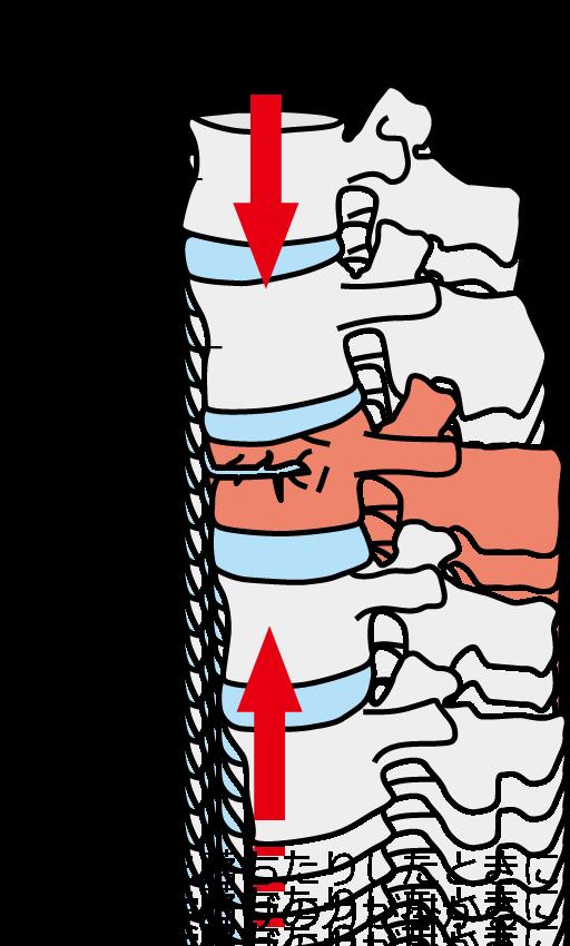 圧迫骨折の説明と負荷のかかり方の説明をしているイラスト|名古屋